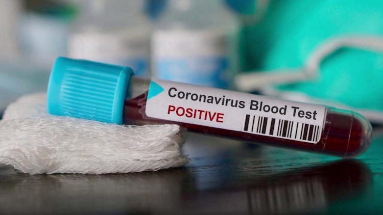 480 deaths due to coronavirus across the country,